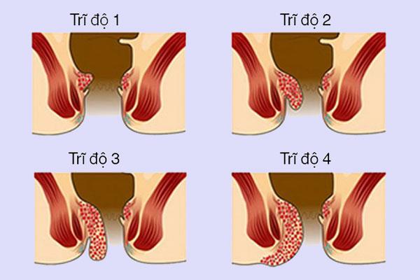 Bệnh trĩ nội