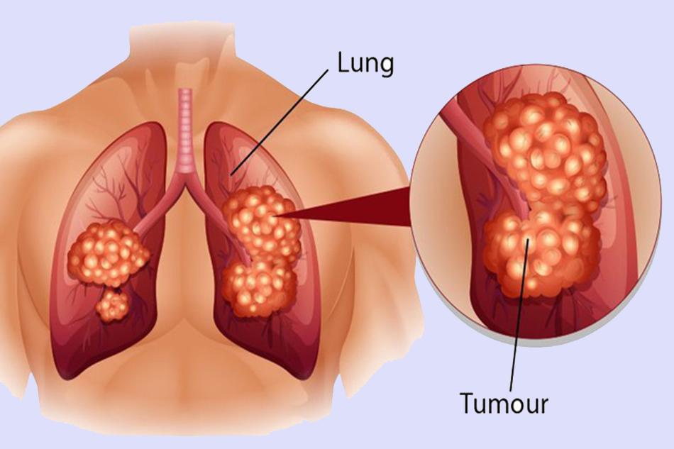 Dấu hiệu ung thư phổi giai đoạn đầu