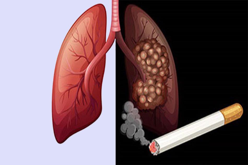 Nguyên nhân ung thư phổi