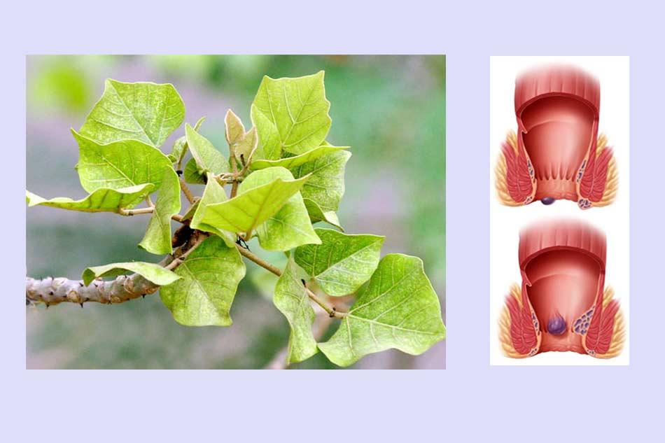 Tác dụng của lá vông nem trong điều trị bệnh trĩ